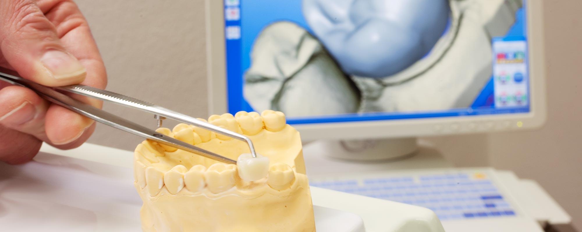 Zahnfarbene Keramikronen in einer Sitzung